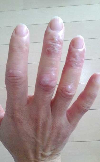 手足口病に大人が感染すると?斑点が水疱化