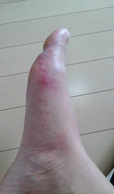 手足口病に大人が感染すると?足に赤い斑点