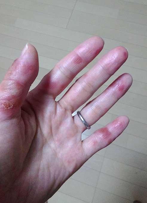手足口病に大人が感染すると?