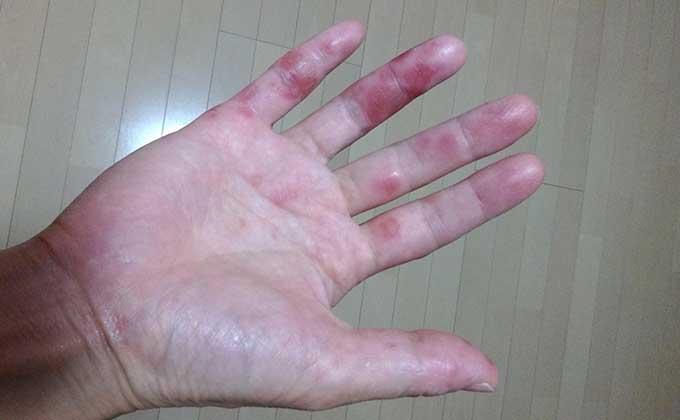 手足口病に大人が感染すると?手に赤い斑点